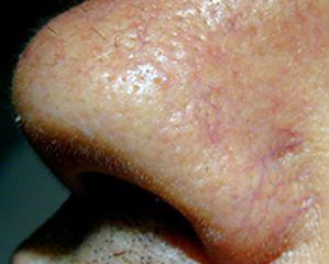 Capillari dilatati sull'ala del naso