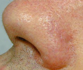 Capillari trattati sull'ala del naso