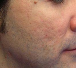 Cicatrici d'acne sul viso