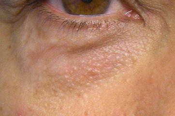 Palpebra senza cisti di sebo dopo trattamento laser