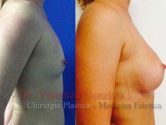 Chirurgia Estetica-749788