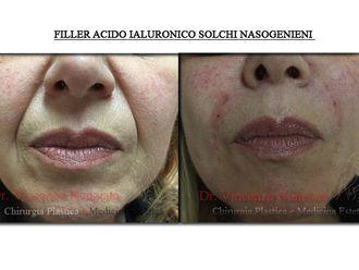 Acido ialuronico-762011