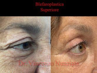 Blefaroplastica-769377