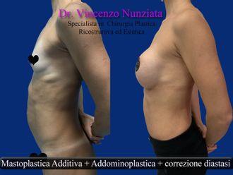 Addominoplastica-774401