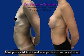 correzione diastasi + mastoplastica