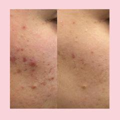 Trattamento Acne mediante peeling- Dott.ssa Maria Trapasso