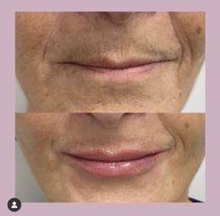 Filler Labbra - Dott.ssa Maria Trapasso