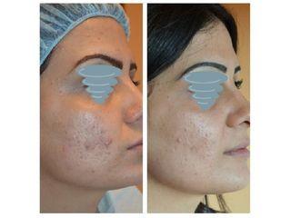 cicatrici acneiche prima e dopo