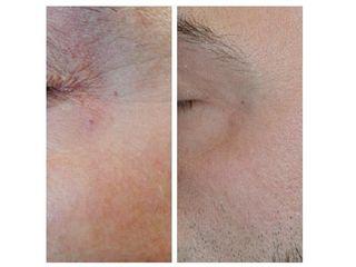 Laser capillari prima e dopo