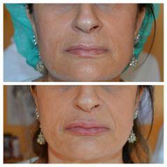 Filler labbra Agarosio prima e dopo