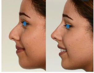 Rinoplastica non chirurgica prima e dopo