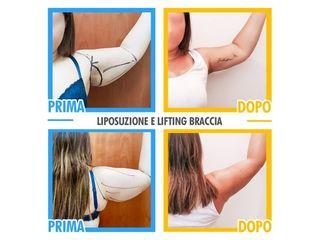 Lifting braccia prima e dopo