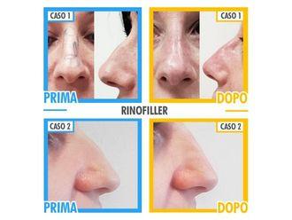 Rinofiller-769113