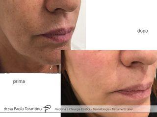 Peeling viso prima e dopo