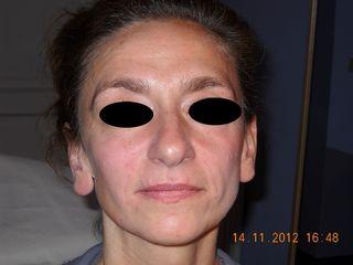 Dopo il ripristino dei volumi del volto