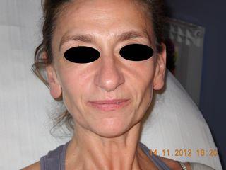 Prima del ripristino dei volumi del volto