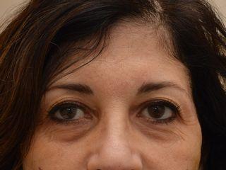 Occhiaie prima del trattamento