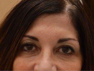 Occhiaie dopo il trattamento