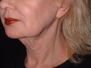 Lifting viso pre trattamento