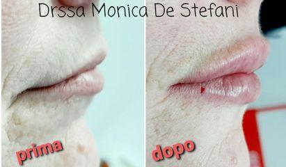 Filler labbra - Studio Medico De Stefani
