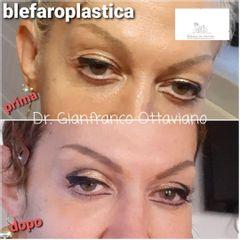 Blefaroplastica - Studio Medico De Stefani