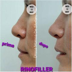 Rinofiller - Studio Medico De Stefani