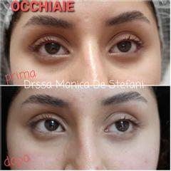 Eliminare occhiaie - Studio Medico De Stefani