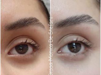 Eliminare occhiaie-790269