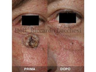 Chirugia Ricostruttiva prima e dopo