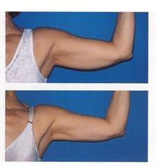 Brachioplastica prima e dopo
