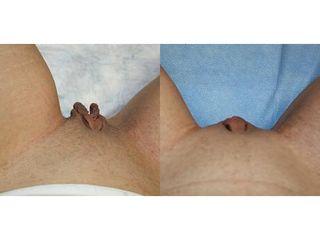 Labioplastica prima e dopo