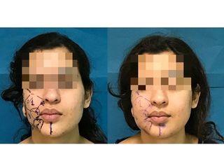 Bichectomia prima e dopo