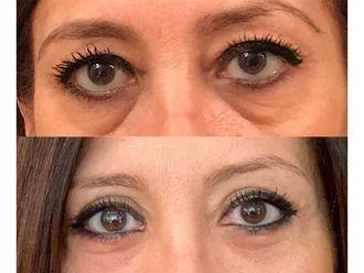 Eliminare occhiaie-774509