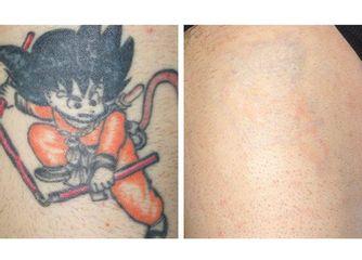 Rimozione tatoo prima e dopo