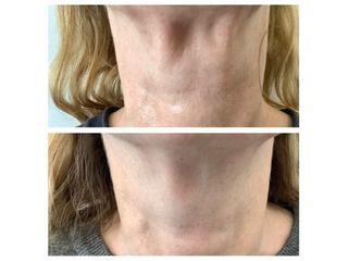 Lifting collo prima e dopo