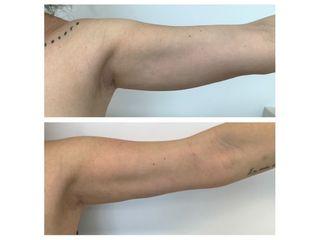Liposuzione prima e dopo