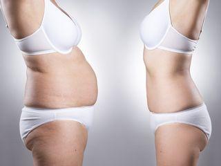 Liposuzione addome