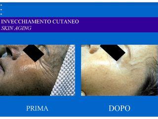 Invecchiamento cutaneo prima e dopo