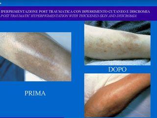 Iperpigmentazione prima e dopo
