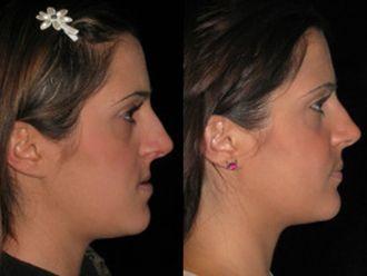 Chirurgia Maxillo facciale-752532