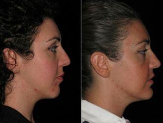 Chirurgia Maxillo facciale-752534