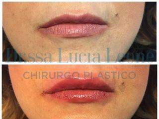 Filler labbra prima e dopo