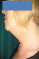 lifting fili collo pre intervento