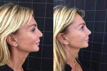 Scultura del viso con acido ialuronico - Dott. Federico Greco