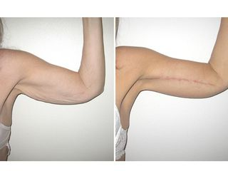 Lifting braccia