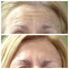 Tossina botulinica prima e dopo
