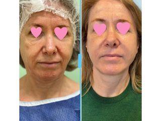 Lifting viso - Dott.ssa Francesca Mazzeo