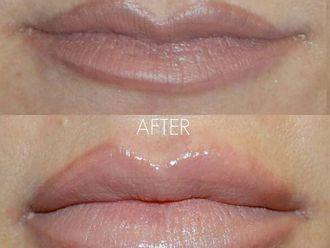 Filler labbra-760330