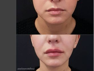 Filler labbra-760734