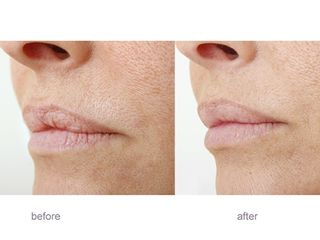 Aumento e rimodellamento labbra